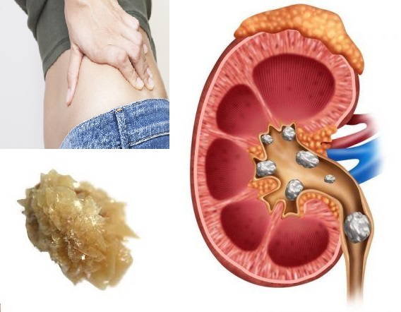 Kidney stones Diagnosis and Treatment